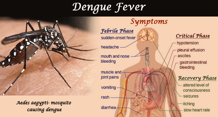 Signs And Symptoms of Dengue Fever And How To Treat It