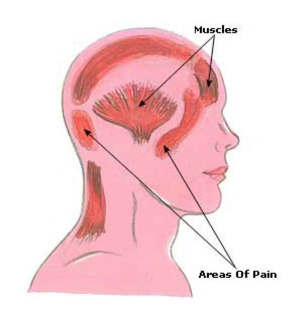 Headache In Different Areas Of Head - Cluster Headaches